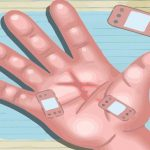 Hand Surgery Doctor – Hospital Care Game
